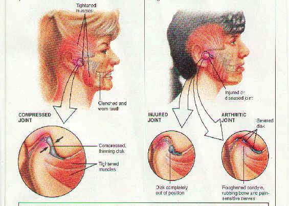 Tmj Disorder Treatment Etoms