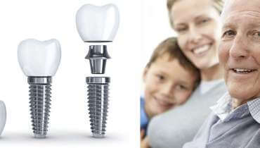 Dental Implants Knoxville, Athens, Oak ridge, cleveland, maryville, sevierville TN